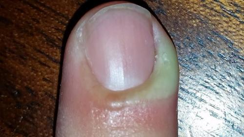 Палец нарывает у ногтя на руке. Лечение нарыва пальца