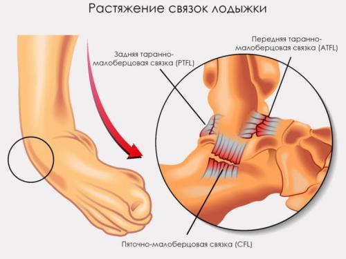Растяжение связок голеностопа за сколько проходит. Срок восстановления разрыва и растяжения связок голеностопного сустава