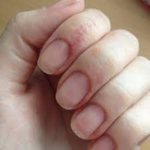 Как ухаживать за ногтями после снятия гель-лака. Главные проблемы ногтей после гель лака
