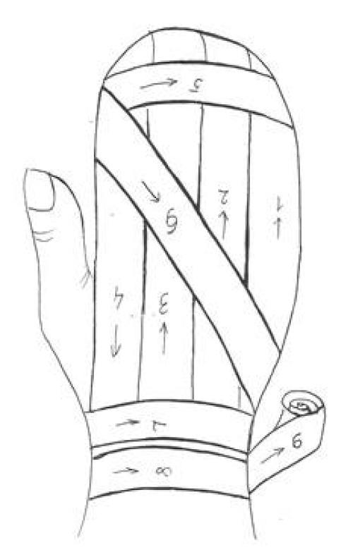 Повязка варежка. Алгоритм наложения повязки «варежка» на все пальцы кисти.
