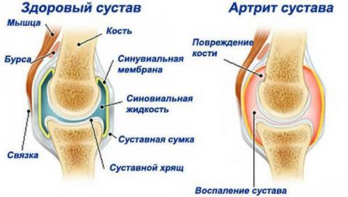 Лфк при артрите и артрозе. Зачем нужна гимнастика