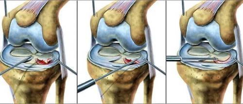 Повреждение мениска 3б степени по stoller. Степени повреждения мениска