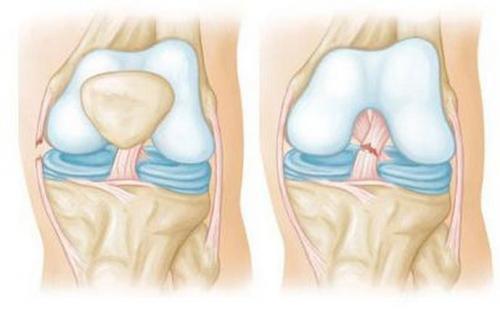 Как употреблять желатин для лечения суставов. Показания и противопоказания к применению