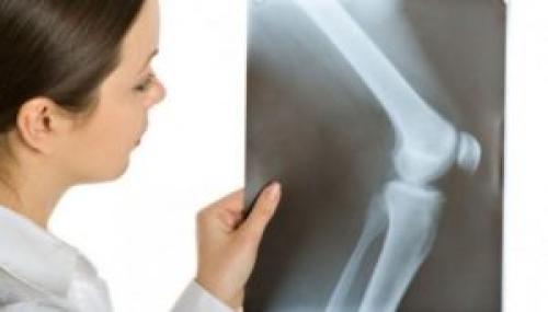 Инфаркт коленного сустава. Причины патологии