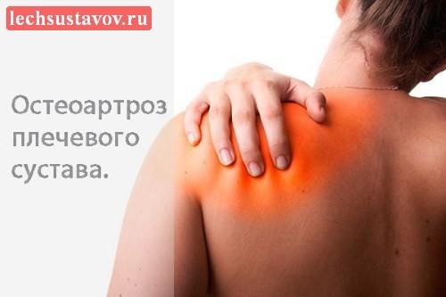 Остеоартроз плечевого сустава: признаки, симптомы, степени, лечение