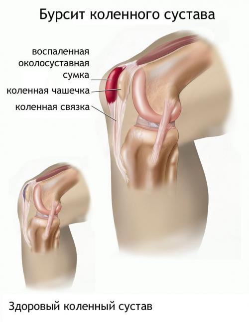 Лечение народными средствами бурсит колена. Лечение бурсита коленного сустава в домашних условиях