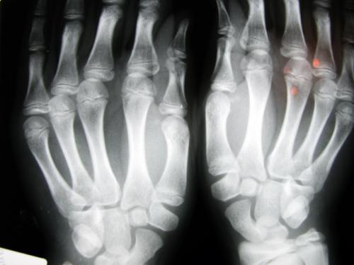 Выбит палец на руке, что делать в домашних условиях. Как лечить выбитый палец