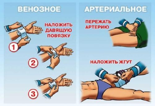 Повязка черепашья сходящаяся на коленный сустав. Техника наложения