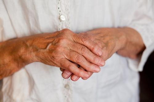 Артроз кисти рук, как лечить. Артроз суставов кисти руки лечение
