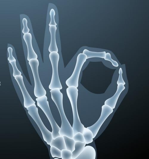 Строение кисти правой руки. Анатомия кисти. Строение костей кисти.
