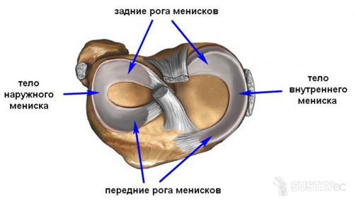 Повреждение заднего рога медиального мениска 3 степени. Почему происходит травмирование
