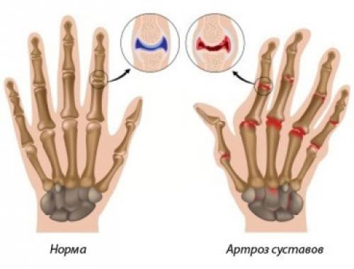 Некроз суставов чаще всего кисти рук народные средства