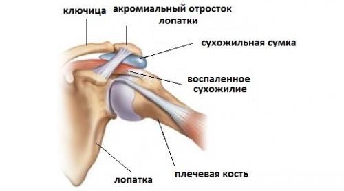 Боль в плечевом суставе и в локтевом суставе. Заболевания суставов и околосуставных тканей