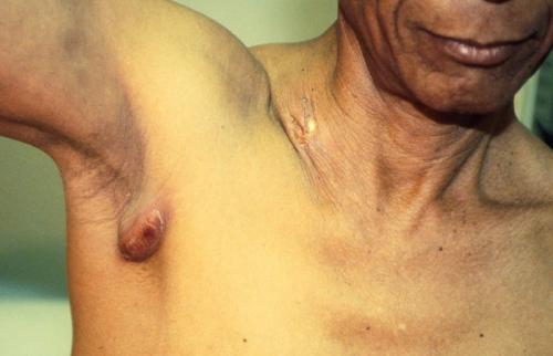 Лимфоузлы увеличились и болят подмышками. Воспалились лимфоузлы под мышкой — причины, симптомы,диагностика, лечение