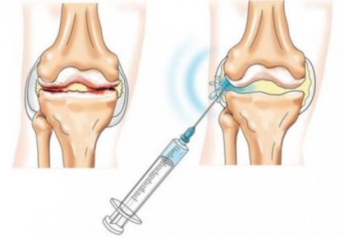 Лекарства для восстановления хрящевой ткани. Почему назначаются уколы?