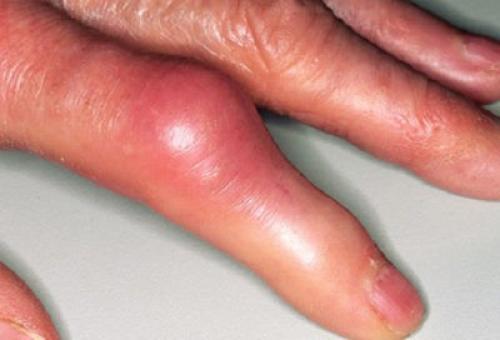 Утолщение суставов на пальцах. Признаки и симптомы. К какому врачу обращаться