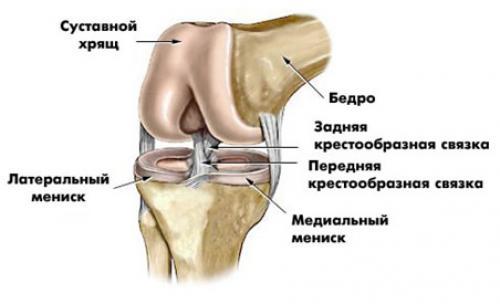 Повреждение внутреннего мениска. Симптомы повреждения мениска