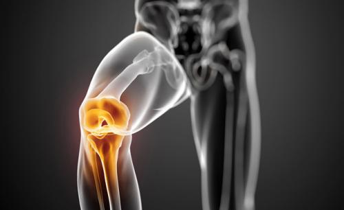 Препараты для восстановления связок колена. Уколы для восстановления связок колена