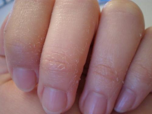 Облазит кожа на кончиках пальцев рук. Причины шелушения на руках