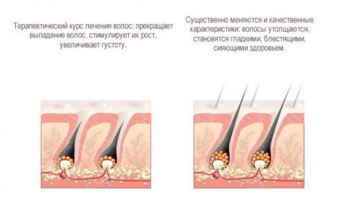 Капсулы для волос для восстановления. Показания и противопоказания