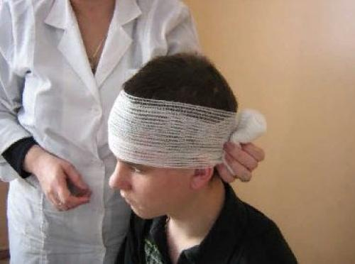 Повязка чепец. Как наложить повязку при травме головы