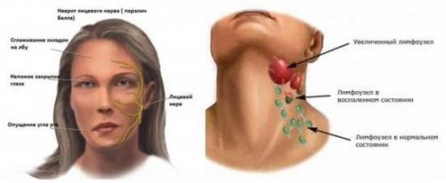 Лимфоузлы на шее у ребенка. Как лечить лимфоузлы на шее у детей, терапия, симптомы, диагностика, профилактика