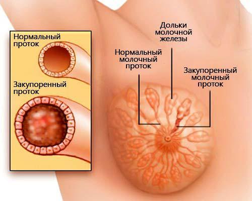 Неподвижное уплотнение в молочной железе. Основные виды уплотнений