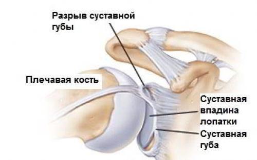 Хруст суставов, как лечить. Существует ли повод для беспокойства