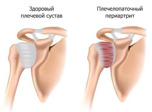 Болит и щелкает плечевой сустав. Плечелопаточный периартрит
