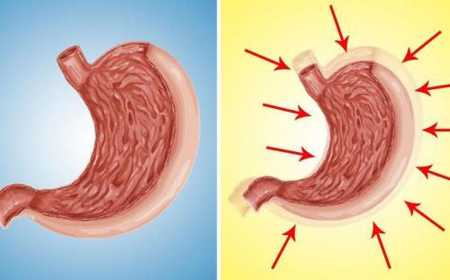 Препараты для уменьшения объема желудка. Как уменьшить желудок естественным путем