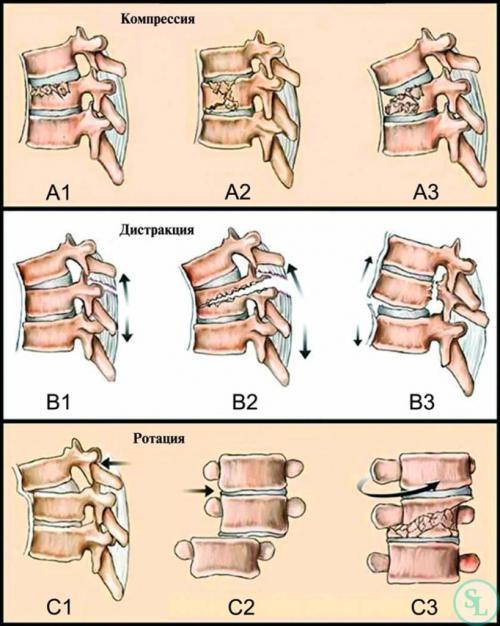 Компрессионный перелом сустава. Виды