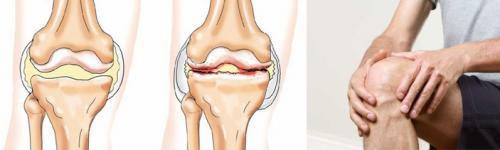 Тибетская медицина лечение суставов. Тибетский метод лечения артроза