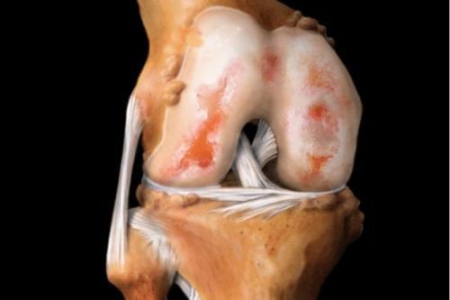 Капсулы для хрящевой ткани. Препараты для восстановления хрящевой ткани суставов: мифы и реальность