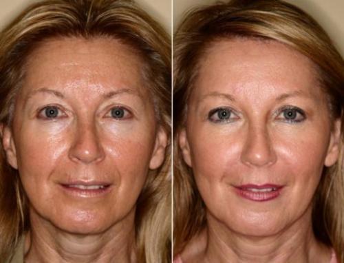 Косметологические процедуры для лица после 50 лет. Инъекционные методы