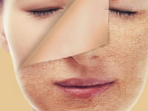 Как увлажнить кожу лица в домашних условиях. Как понять, что кожа лица обезвожена