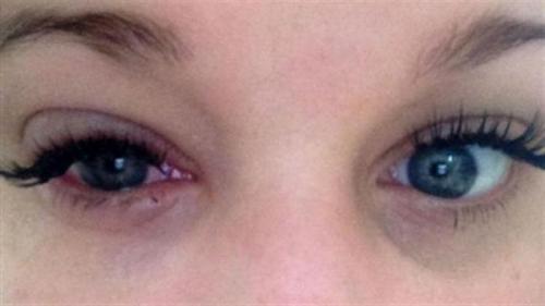 Аллергия на тушь для ресниц симптомы. Лечение аллергии на тушь для ресниц