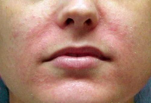 Шелушится кожа на лице покраснение. Определение аллергической реакции кожи