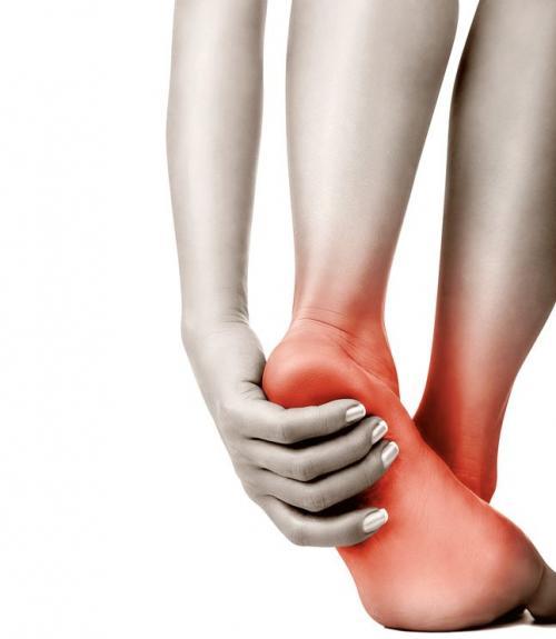 Острая боль в стопе без причины. Боли в стопе: причины и лечение