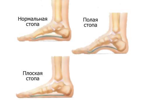 Боль в стопе под пальцами. Боли в ступне под пальцами при ходьбе