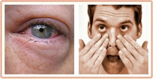 Синяки под глазами у мужчин: причины, лечение, поводы для беспокойства