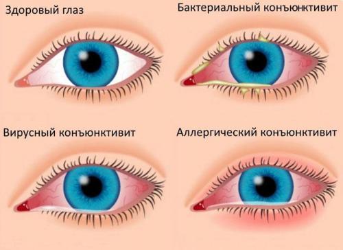 Красные круги под глазами у ребенка. Почему под глазами у ребёнка красные круги
