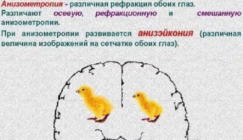 Разница в диоптриях между глазами. Анизометропия