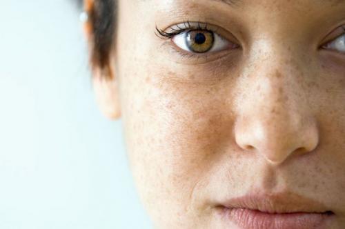 Очень сухая кожа тела, что делать, какие витамины пить. Чем вызвана сухость кожи