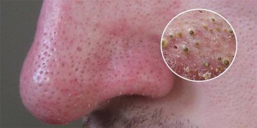 Черные точки на лице большие. Черные точки на коже лица - как избавиться в домашних условиях косметическими и народными средствами