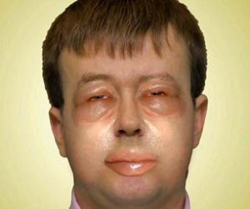 Покраснение носогубного треугольника на лице причины. Лечение аллергической реакции