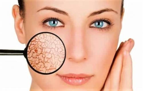 Косметика для сухой кожи лица. Уход за сухой кожей лица: базовые знания