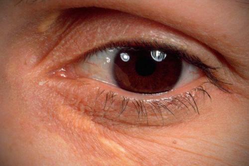 Желтые пятна под глазами. Под глазами на веках желтые пятна – о, какой болезни они говорят?