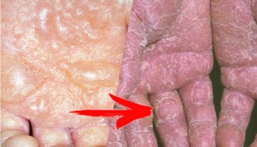 Экзема кожи рук. Причины экземы на руках + факторы риска