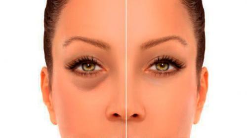 Как убрать синяки под глазами навсегда. Как быстро избавиться от синяков под глазами в домашних условиях?