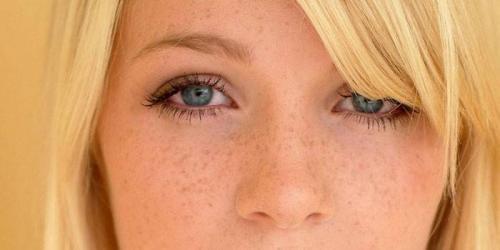 Как убрать пигментные пятна на лице. Причины появления пигментных пятен на лице